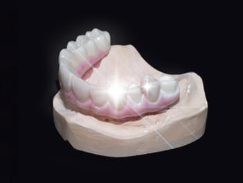Implant bridge restorations