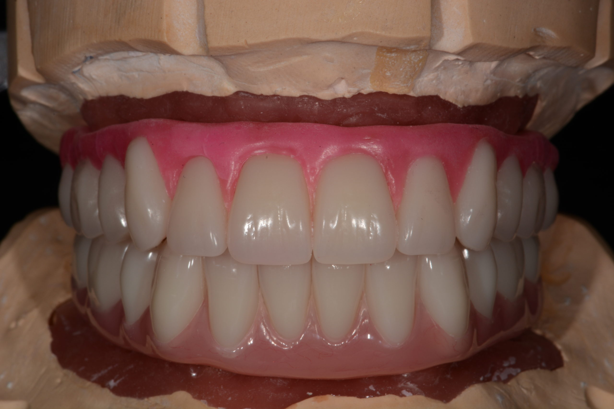 Acrylic hybrid denture