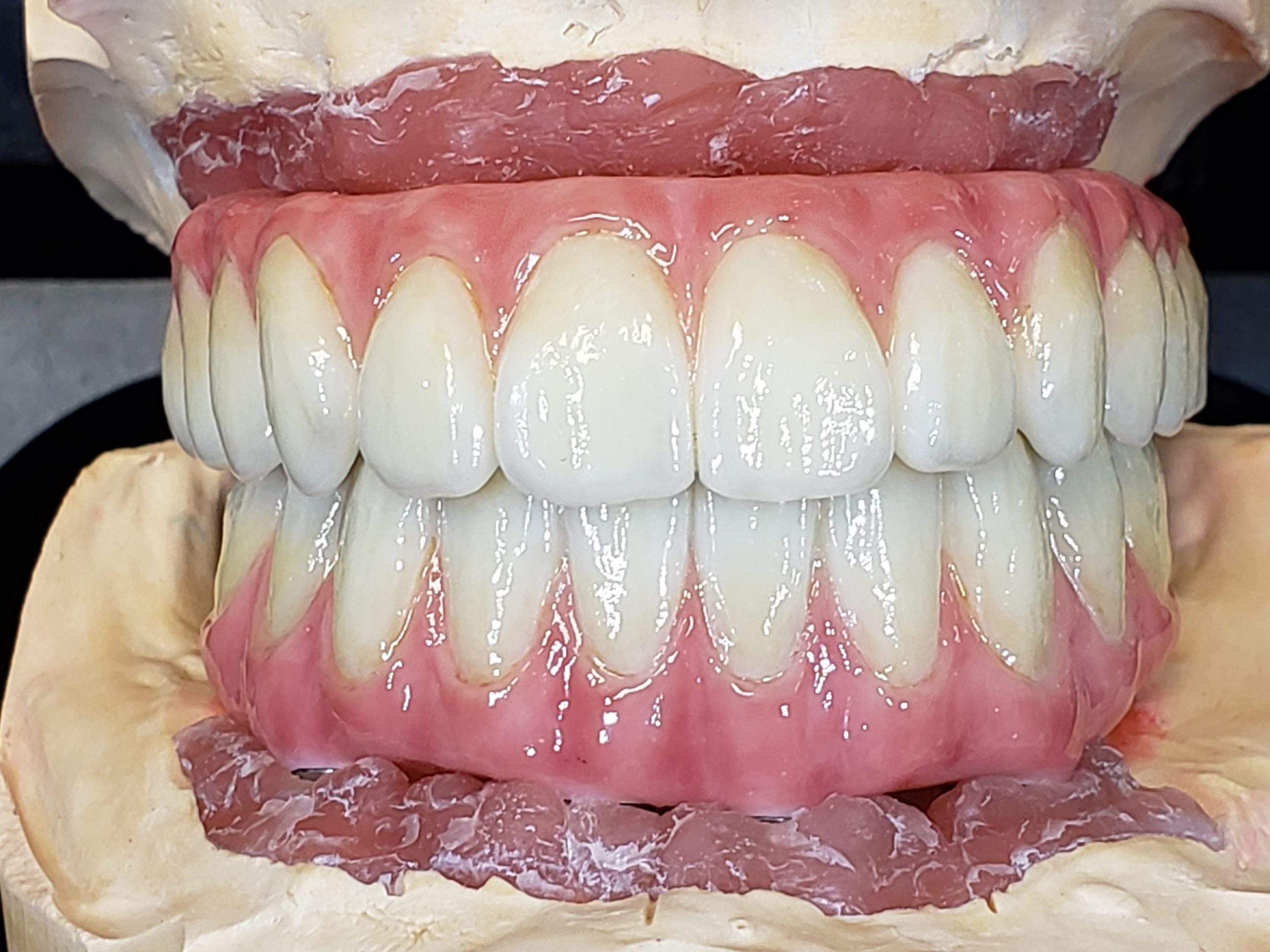 Full contour Zirconia Bar